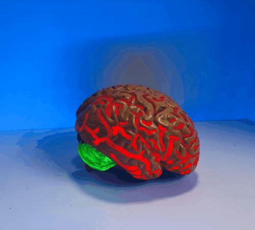 Rare Epilepsies Brain Game